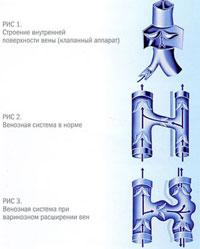 Варикоз на ногах симптомы и лечение фото